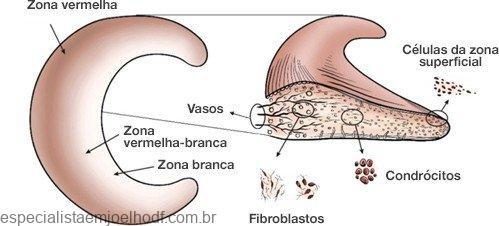 6 tipos de rotura do menisco medial ou lateral 11