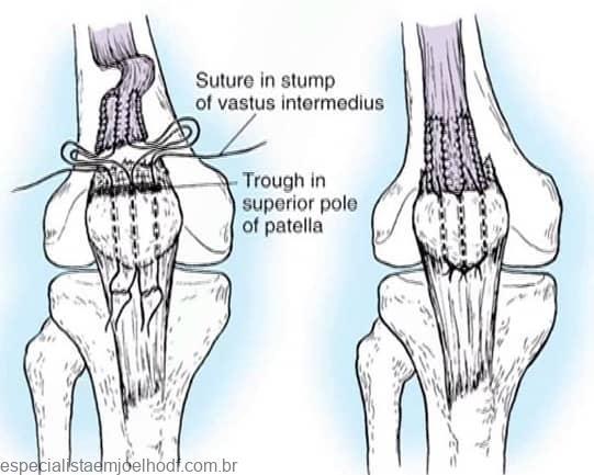 Lesões no mecanismo extensor dos joelhos 6