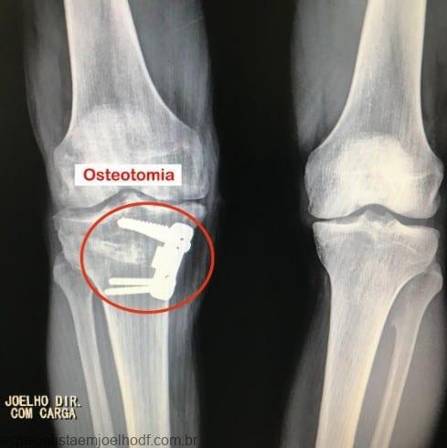 Osteotomia de Tíbia para Realinhamento 3