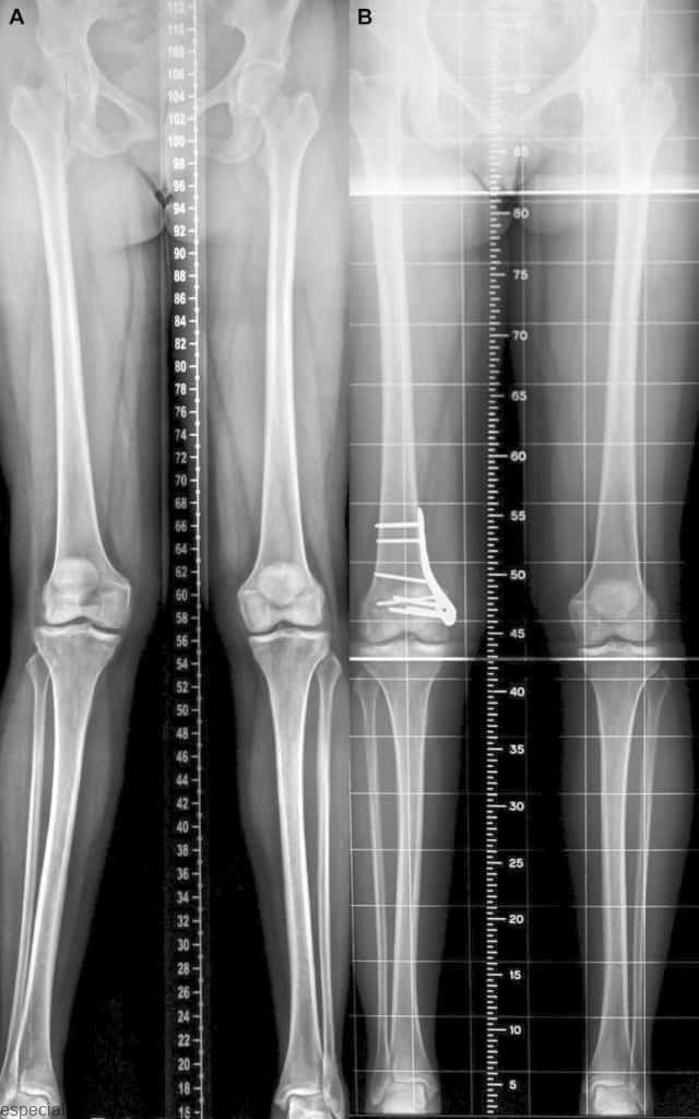 Osteotomia de Fêmur para Realinhamento 4