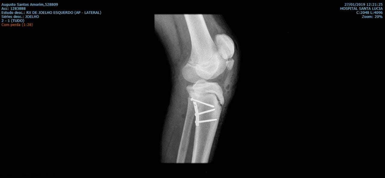 Fraturas fisárias (placa de crescimento) no joelho 2